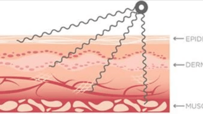 how microcurrent therapy works
